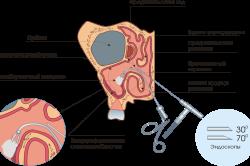 Эндоскопия при гайморите