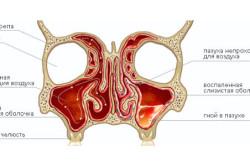 Схематичное изображение гайморовых пазух носа в норме и при воспалении