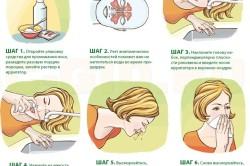 Этапы промывания носа при синусите