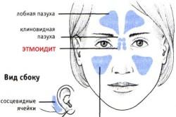 Схема этмоидита