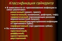 Классификация гайморита