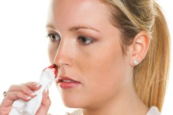 Носовые кровотечения после прокола