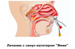 Процесс лечения синус-катетором