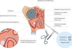 Принцип эндоскопии при гайморите
