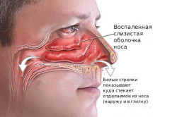 Образование хронического гайморита