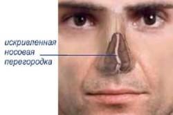 Искривленная носовая перегородка - причина ринита