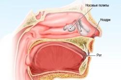 Полипы в носу - причина этмоидита