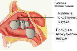 Полипы - причина заложенности носа