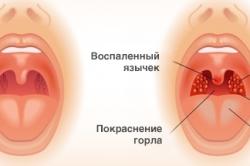 Ангина - осложнение синусита