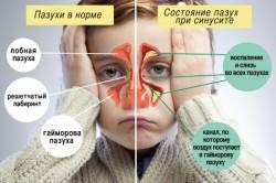 Состояние пазух в норме и при синусите
