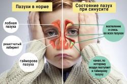 Пазухи в норме и при синусите